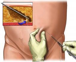 Vid en fettsugning avlägsnas envisa lokala fettdepåer belägna mellan huden och muskulaturen med permanenta resultat.